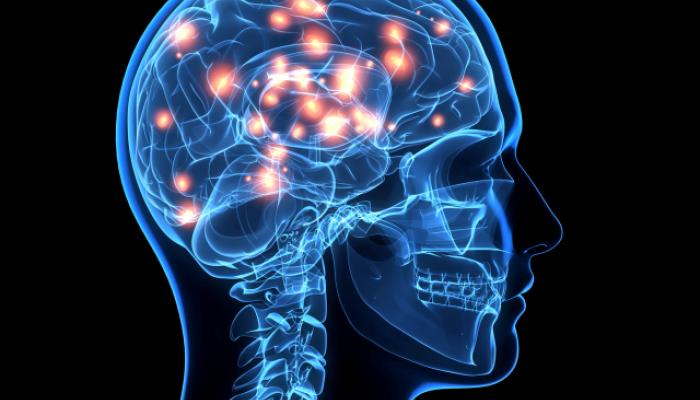 Ο εγκέφαλος όσων έχουν το γονίδιο εμφανίζεται γερασμένος κατά 12 χρόνια σε σχέση με τους συνομηλίκους τους