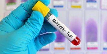 εξέταση αίματος για ανίχνευση πιθανότητας Alzheimer