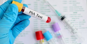 εξέταση PSA