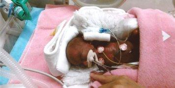 το νεογέννητο γεννήθηκε 268 γραμμάρια και έζησε